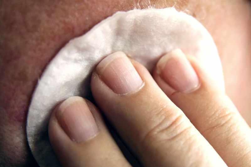 Нанесение муравьиного спирта на кожу