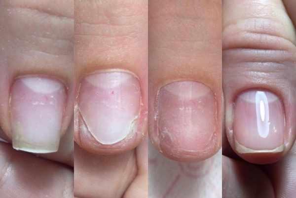 Онихолизис или отслойка ногтя