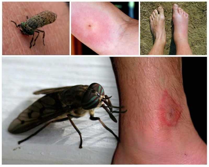 Аллергия от укуса насекомых