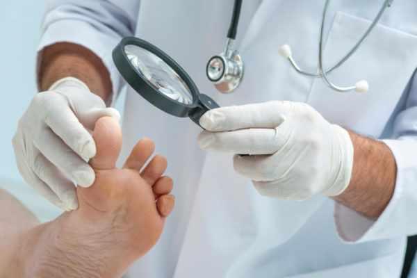 Повреждение ногтей при вирусе Коксаки