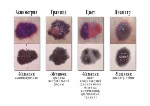 Отличие меланомы от родинки