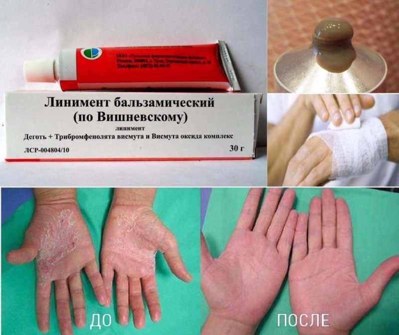 Мазь Вишневского от гнойных заболеваний