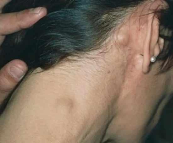 Опухоль в лимфоузлах
