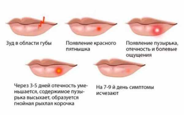 Этапы герпетической сыпи