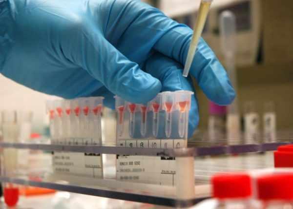 Тест на наличие антител к кори