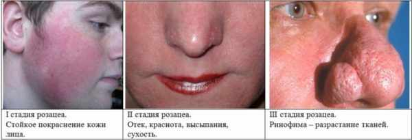 Классификация демодекоза