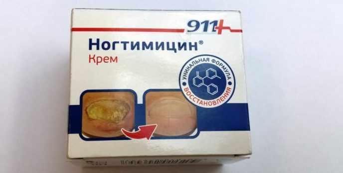 Ногтицин