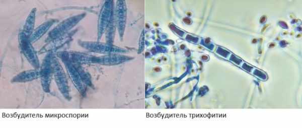 Отличие трихофитии от микроспории
