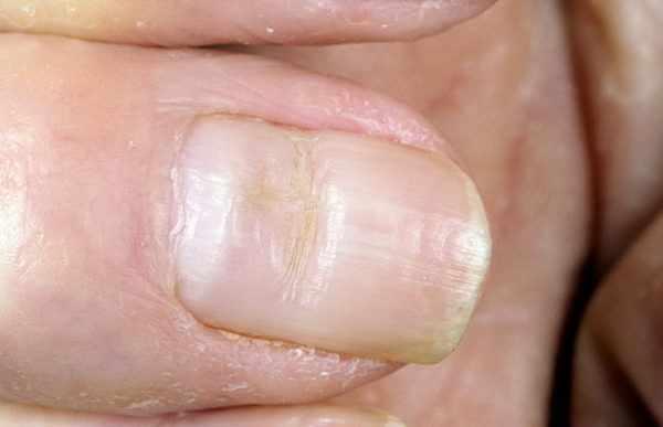 «Маникюрная» дистрофия ногтя