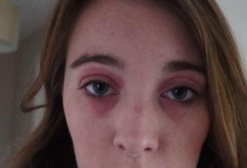Аллергия - возможная причина появления синяков под глазами