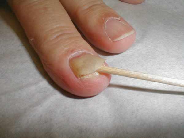 Осложнение грибка ногтей