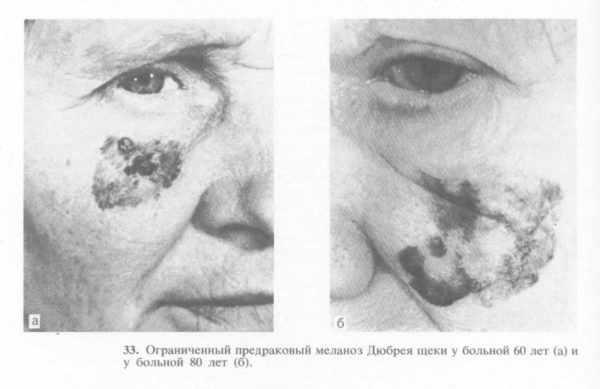 Предраковый меланоз Дюбрея