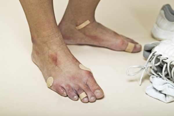 Мелкие травмы кожи