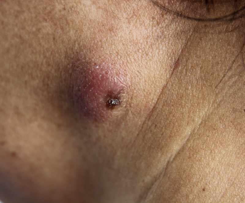 Клинические проявления гидраденита