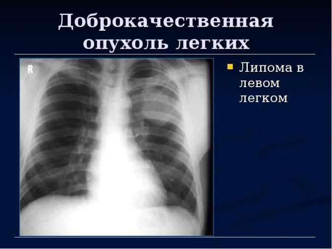 Жировик на внутренних органах