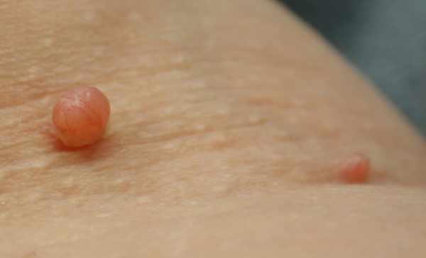 Папилломавирус человека