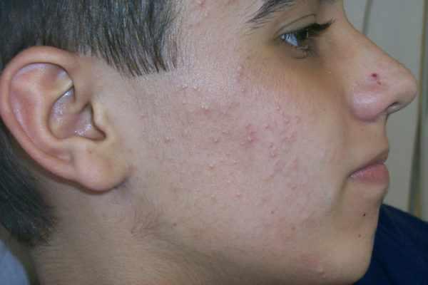Акне на лице