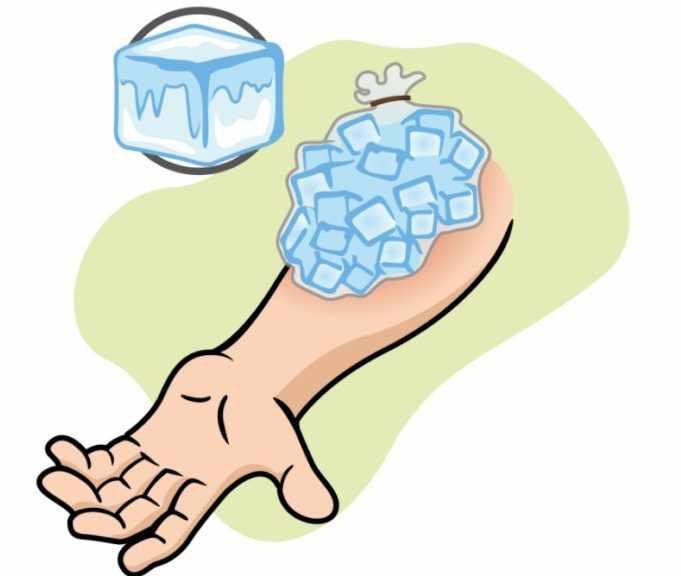 Охлаждение гематомы