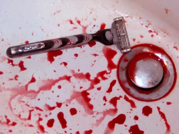 Порезы бритвой
