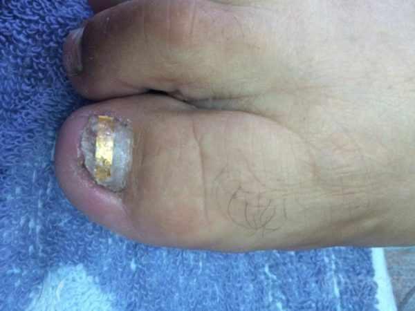 Коррекция вросшего ногтя