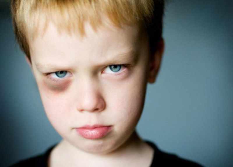 синяк у ребенка на глазах