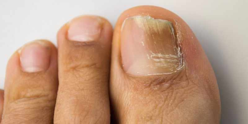 Онихомикоз ногтя