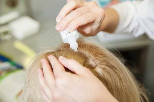 Лечение зуда кожи головы