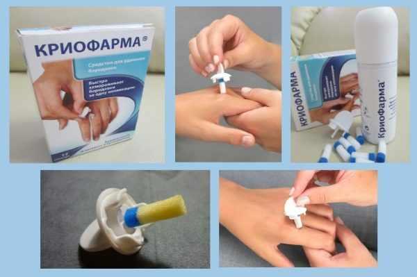 Удаление папилломы препаратом Криофарма