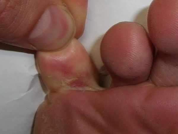 Симптомы поражения ног грибком