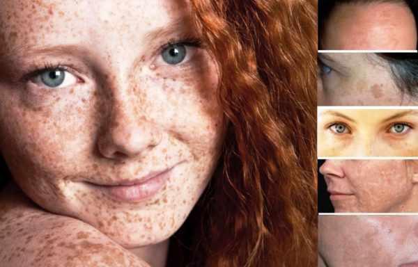 Виды пигментных пятен на лице