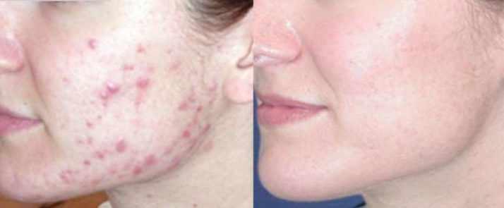 Акне до и после лечения