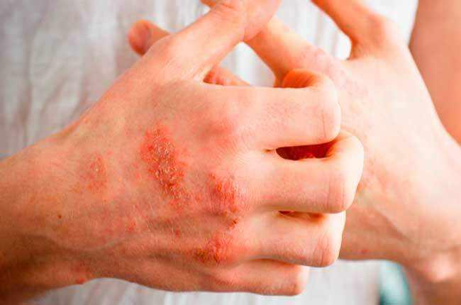 Нервная экзема на руках
