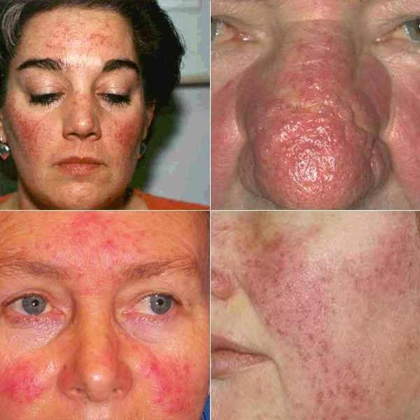 Проявление симптоматики демодекоза