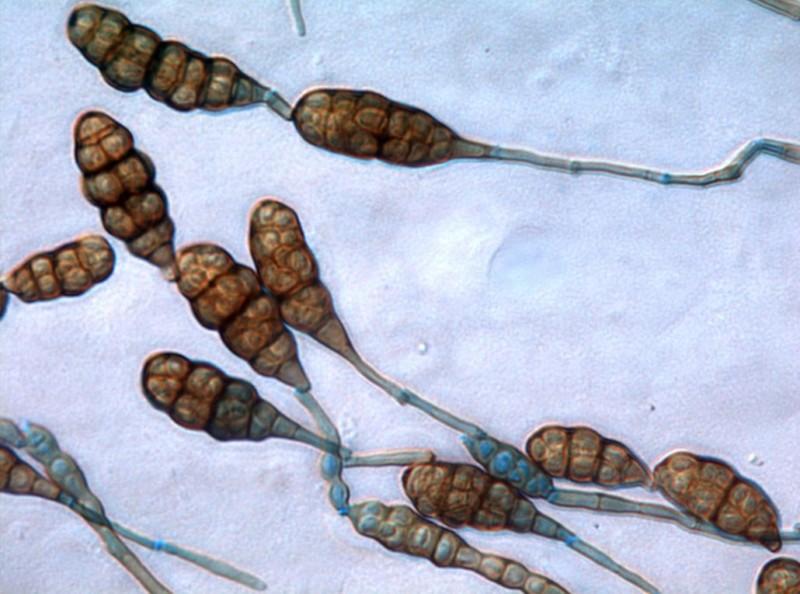 Плесень Alternaria alternata под микроскопом