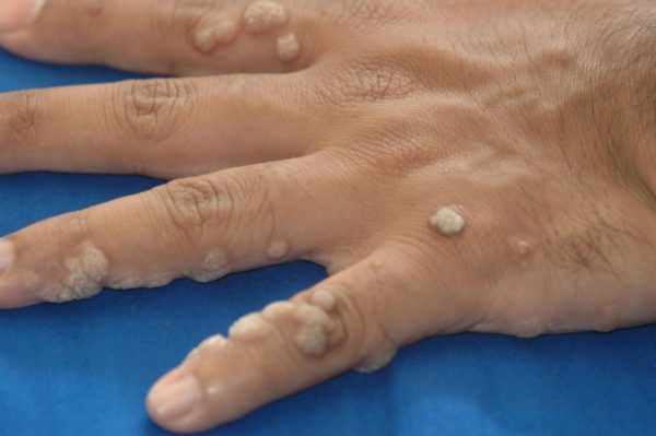 Папилломы на руках