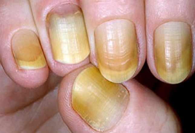 Ногти и курение
