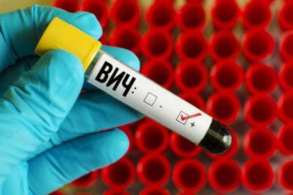 ВИЧ и герпес 8 типа