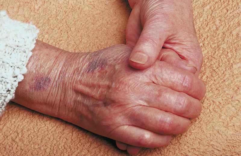Сенильная (старческая) пурпура