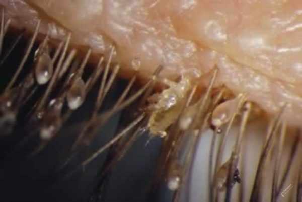 Лобковые вши на ресницах