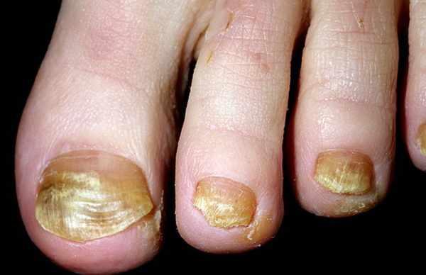 Синдром желтых ногтей