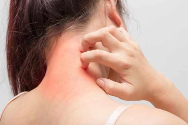 Раздражение кожных покровов