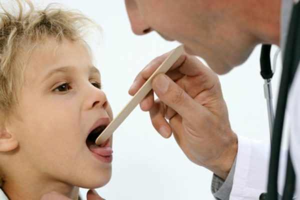 Инфекционный мононуклеоз. у ребенка