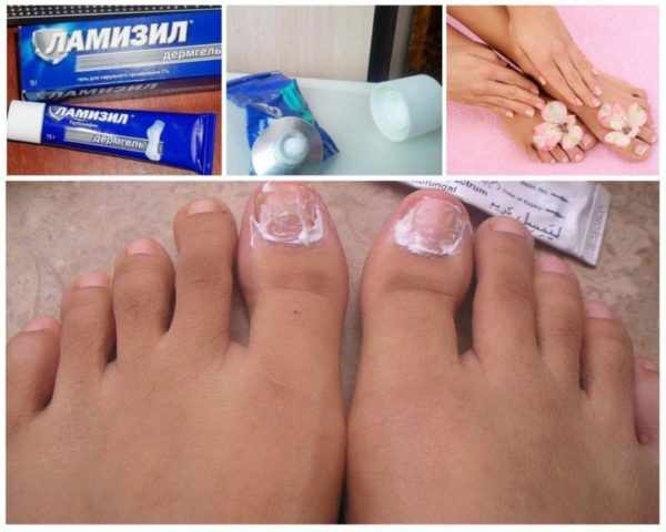 Ламизил от грибка ногтей