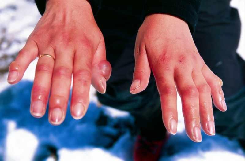 Обмороженные руки