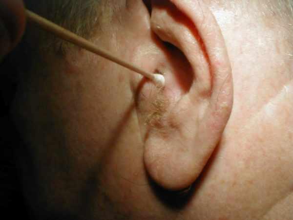 Забор мазка из уха