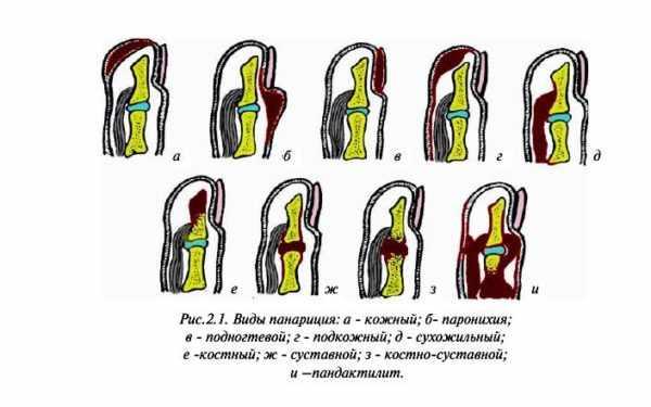 Классификация панарициев