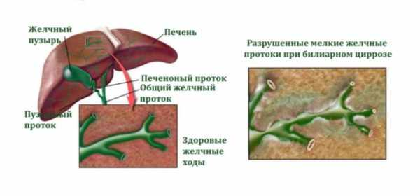 Билиарный цирроз