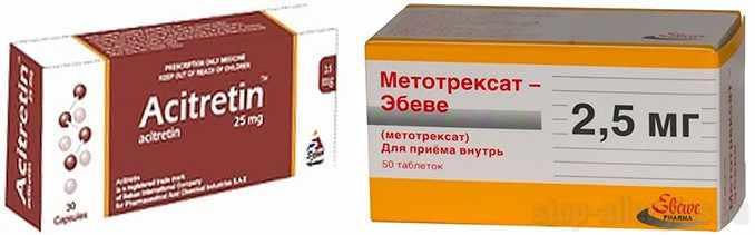 Метотрексат и Ацитретин