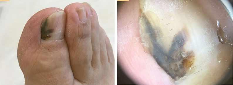 Акральная лентигинозная меланома