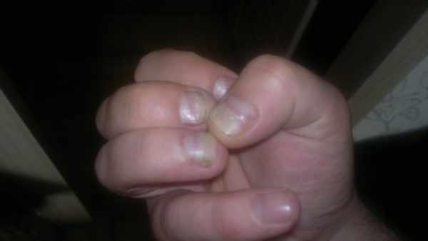 Расслоение ногтей у ребенка